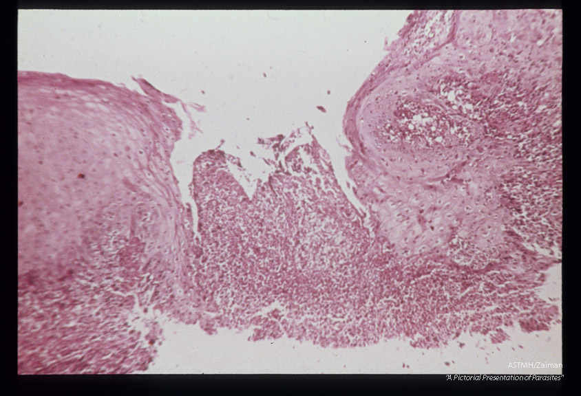 (South America). Hematoxylin-eosin stained section showing ulceration.