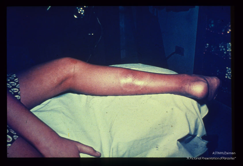 Inoculation site in a patient with acute Chagas' disease.