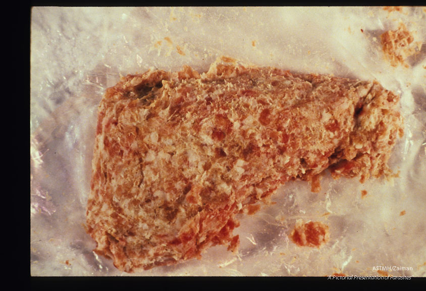 Infected pork sausage which produced human infection.