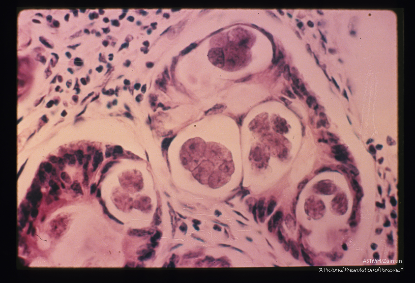 Human bowel. Five eggs in various stages of development are seen in the crypts of the bowel.