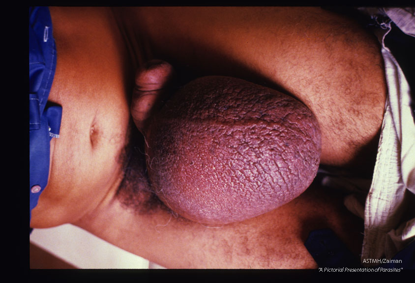 Inguinal adenopathy plus enlargement of male genitalia.