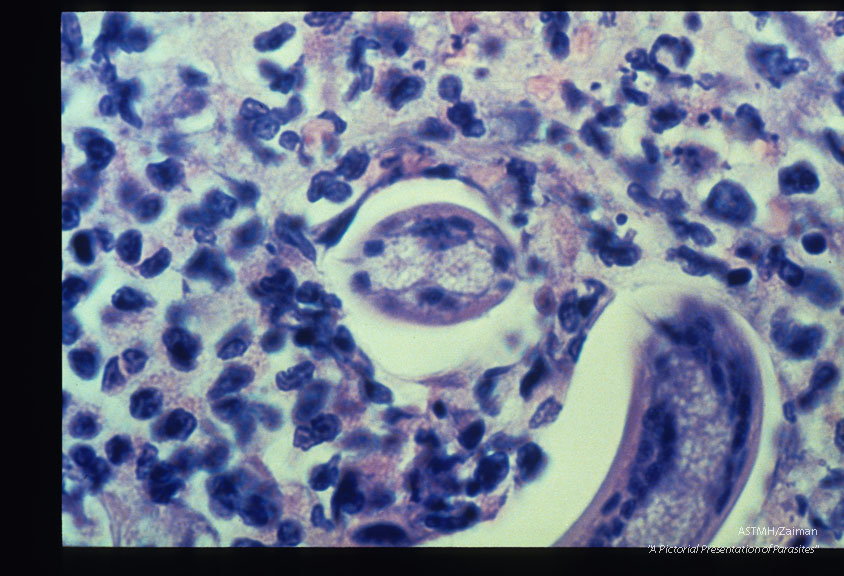 High power view of a cat liver granuloma with larva surrounded by eosinophils.