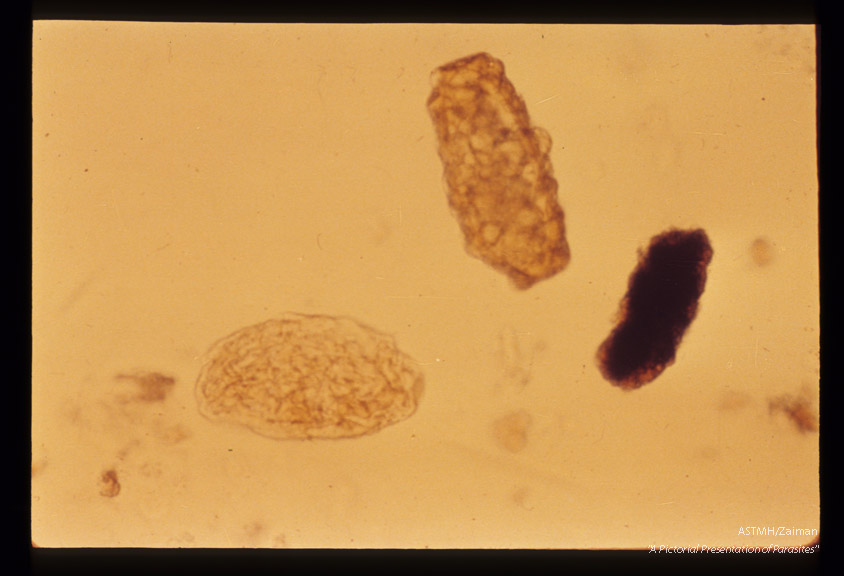 Infertile egg, mamillated and distorted, being more elongate and rectangular than normal.