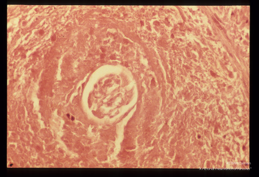 Low power view of same parasite. H&E stain.