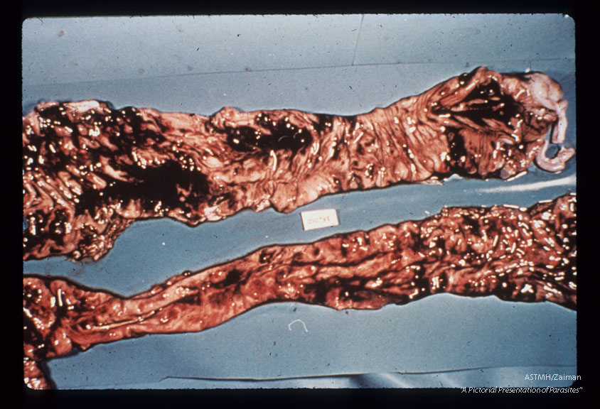 Trichuris tichiura, Balantidium coli,Entamoeba histolytica. Autopsy specimen showing adult helminths, ulcerations and bloody intestinal contents.