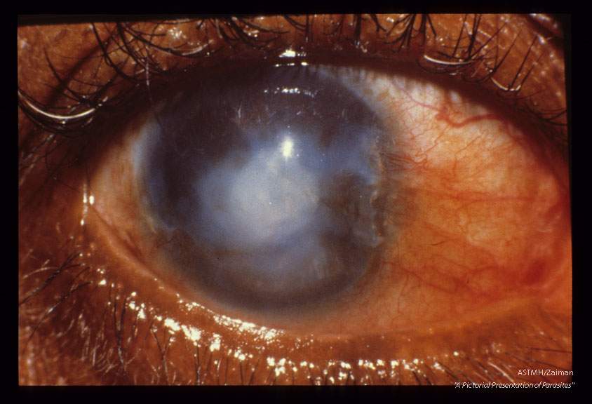Advanced sclerosing keratitis in a 52 year old Guatamalan male. The inferior two thirds of the cornea are opaque and vascularized. There is a pigmentation line extending across the limbus onto the cornea.