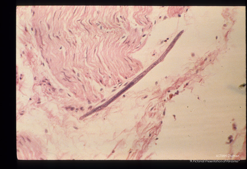 Autoinfection larva pentrating deep into intestinal wall.