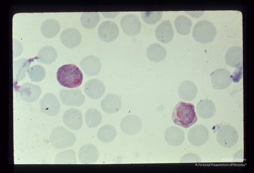 Gametocytes.