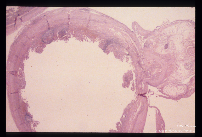 Adult male in the mesoappendiceal vein. The parasite is seen as a coiled object in the upper right hand corner. No ova were seen in the appendix itself.