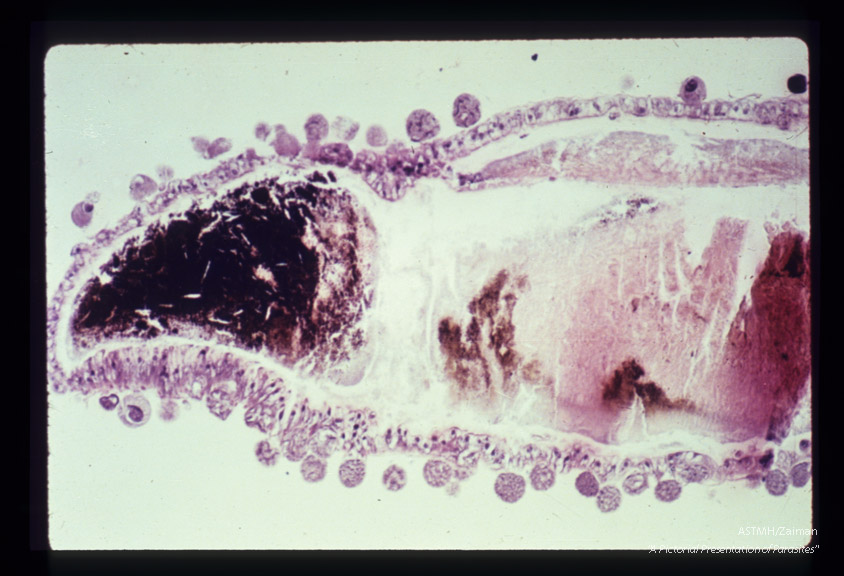 Oocysts on wall of mosquito stomach. The spherical objects peripheral to the stomach wall are the oocysts within which sporozoites are formed.