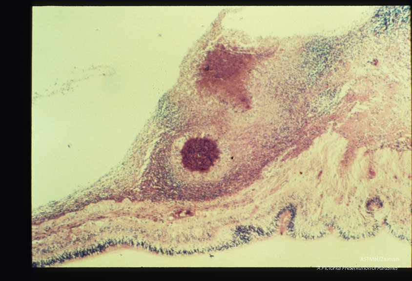 Granuloma in detached human retina (due to ocular larva migrans).