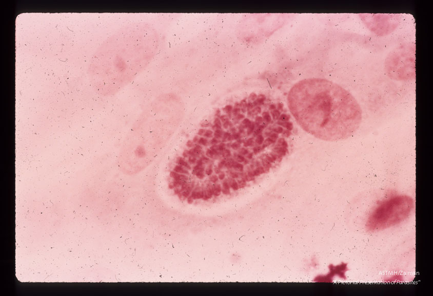 Incompletely segmented first-generation schizont. Nuclei of the forming merozoitea are clearly visible. Giemsa's stain. (58 hr).