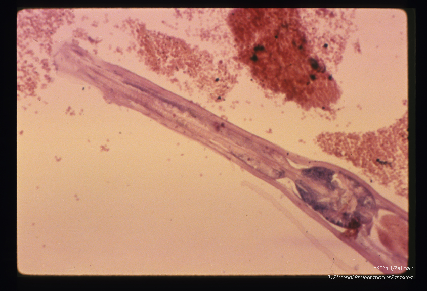 Longitudinal section of adult worm in appendix. The structure of the esophagus is more apparent in this higher power.