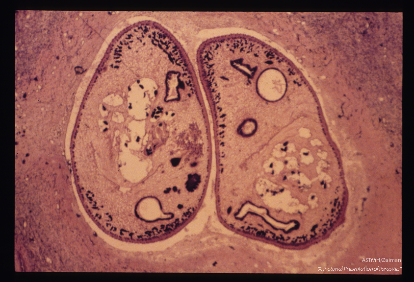Two parasites are seen within a lung cavity.