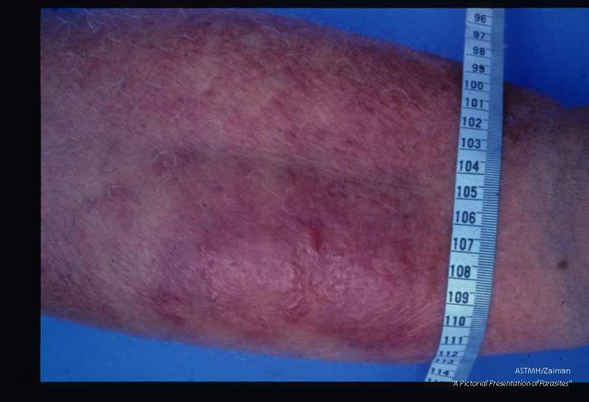 Cellulitis and elephantiasis of the right leg of seventy-seven year old female. An attack began four days earlier. Case acquired thirty years ago.
