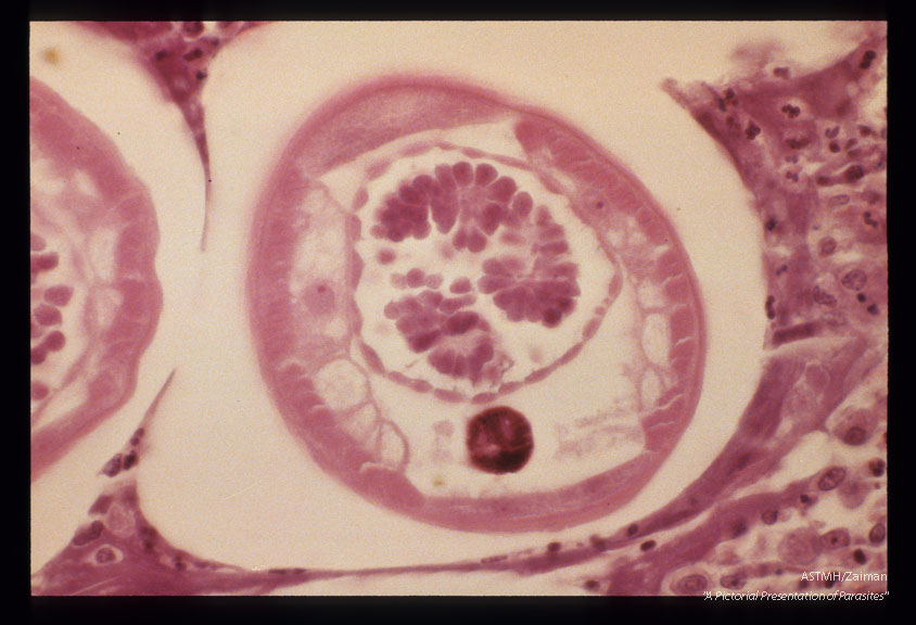 Section of a male worm in a nodule. Liberia.