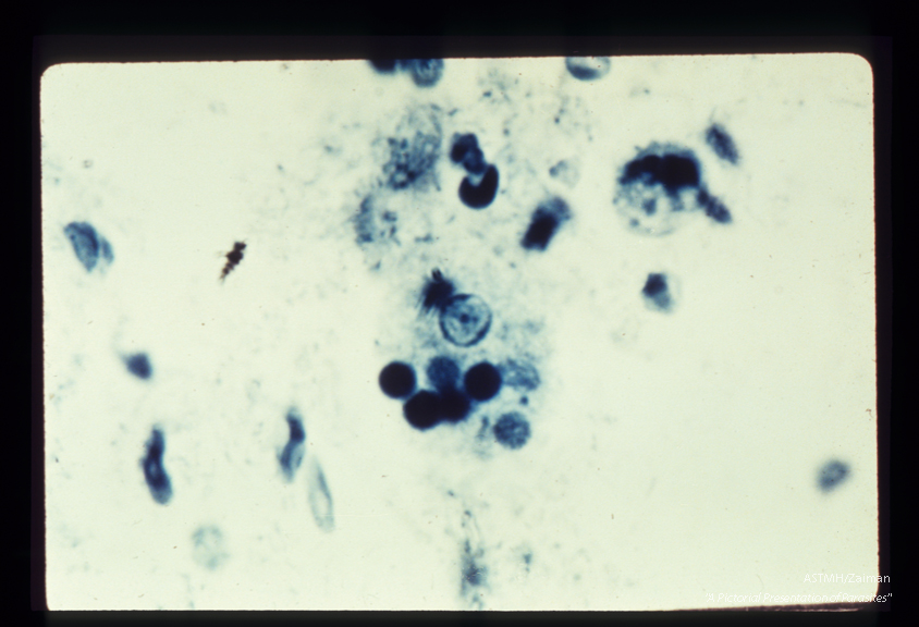 Trophozoites . iron hematoxylin stain. Each specimen has engulfed red blood cells which stain darkly.
