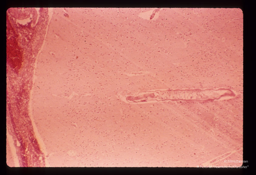 Nematode in human brain.