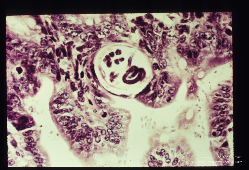 Larvae within an adult female embedded in a mouse intestine. (H&E).
