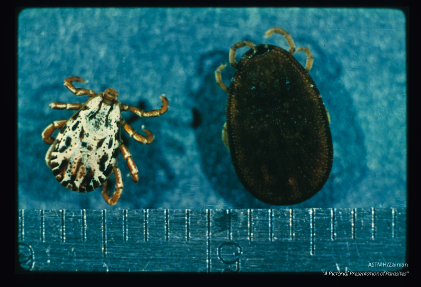 Dorsal view. A brightly decorated scutum is present on the hard tick (Dermacentor) but not on soft Argas.