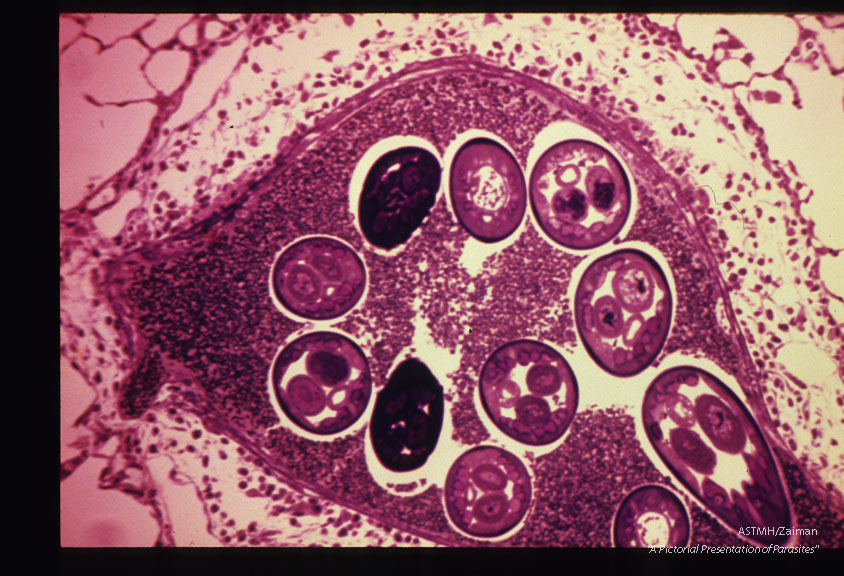 Male and female adults in a pulmonary artery of a Mongolian gerbil.