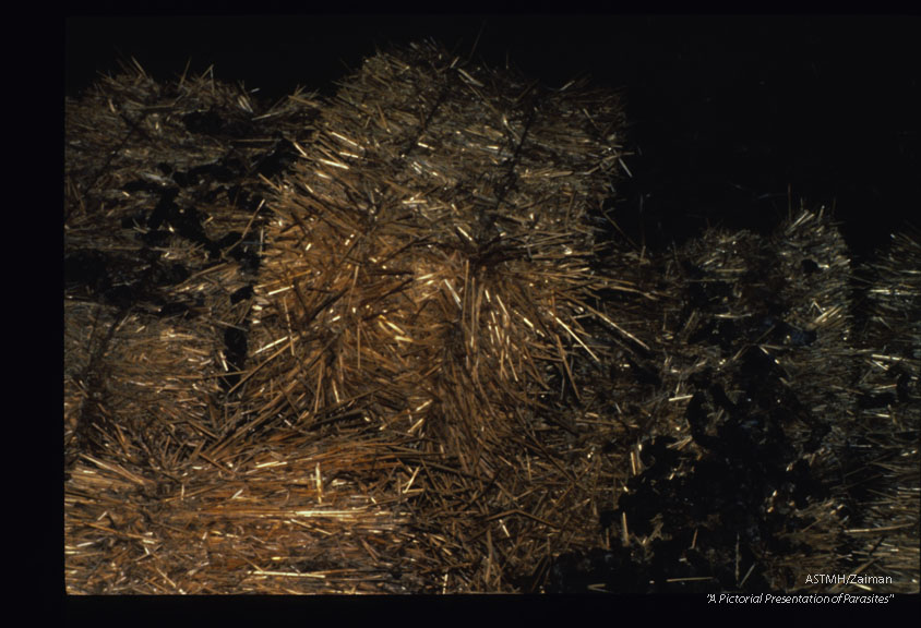 Bales of straw in a midwestern barn contaminated by racoon feces.