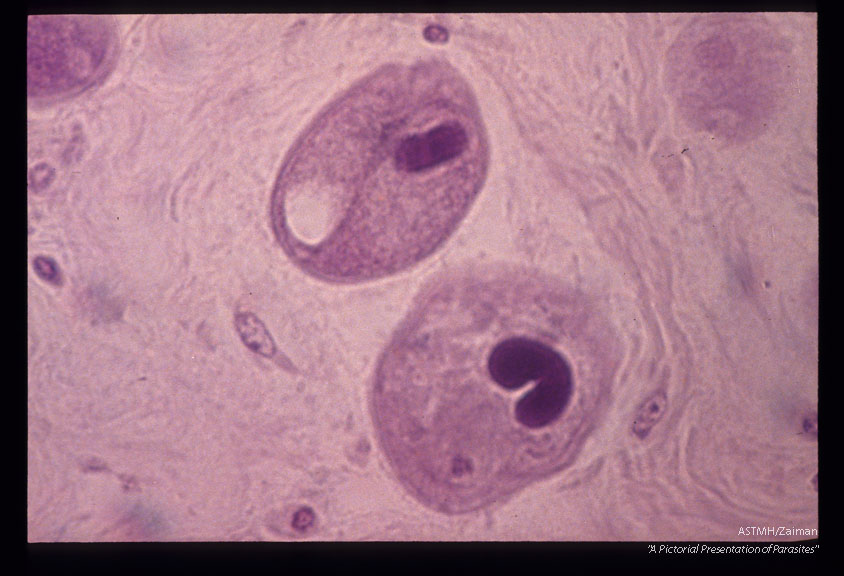 Trophozoites. Note the contractile vacuole and the macroneucleus.