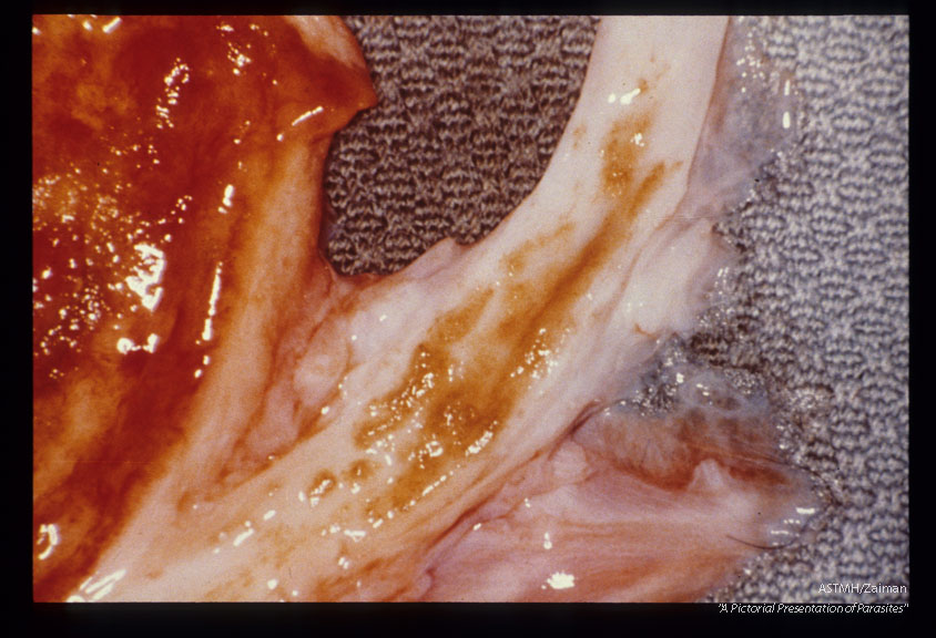 Sandy patches in ureteral mucosa of a chimpanzee. Note inflamed bladder mucosa.