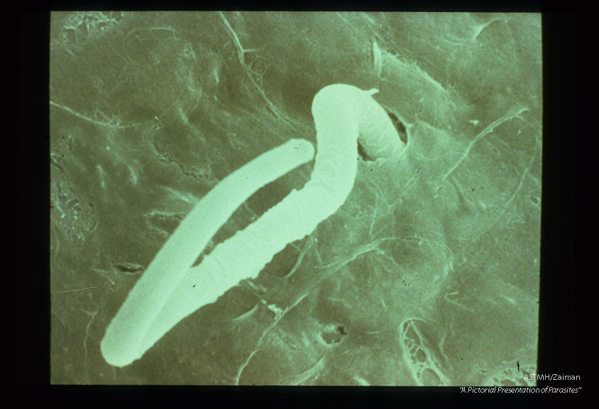 Scanning electron micrographs of microfilariae penetrating the midgut of Aedes aegypti. View is from the hemocoel side of the midgut and it should be noted that microfilariae usually retain their sheath during penetration.
