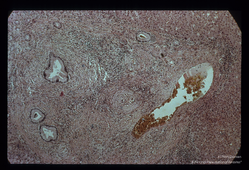Portal fibrosis. Case of pipestem fibrosis (see slide 24).
