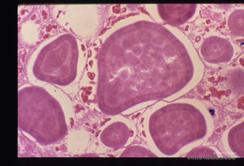 These slides are from a second such case. Reference Amer. Journ. Surg. Path. '11(8): 598-605,1987.