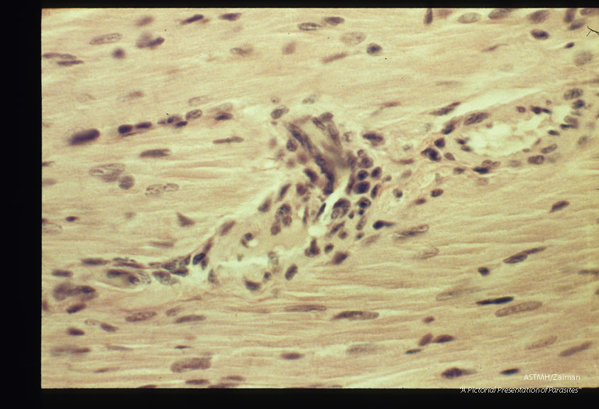 Perivascular inflammatory lesions. Experimental trichinous myocarditis in rats.
