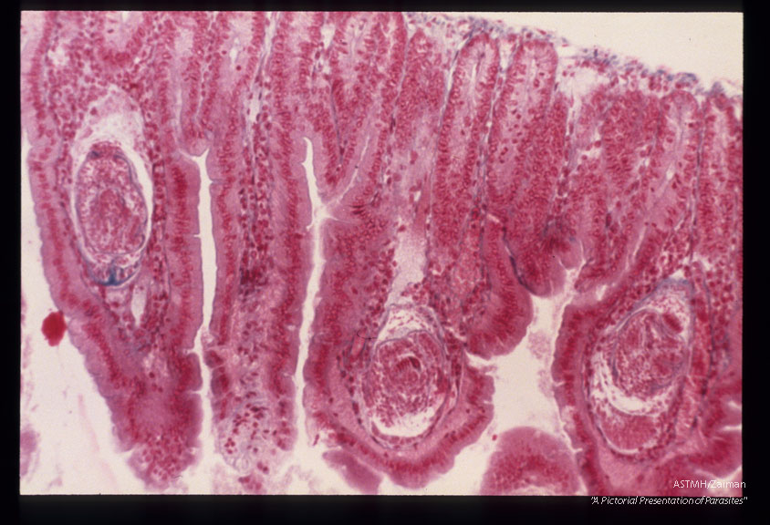 Cysticercoids in villi of a mouse.