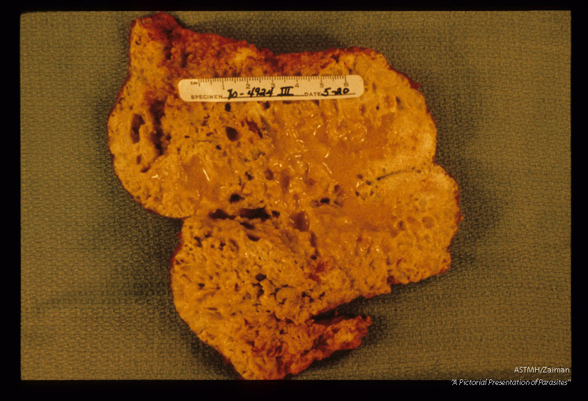 Portion of infected human liver.