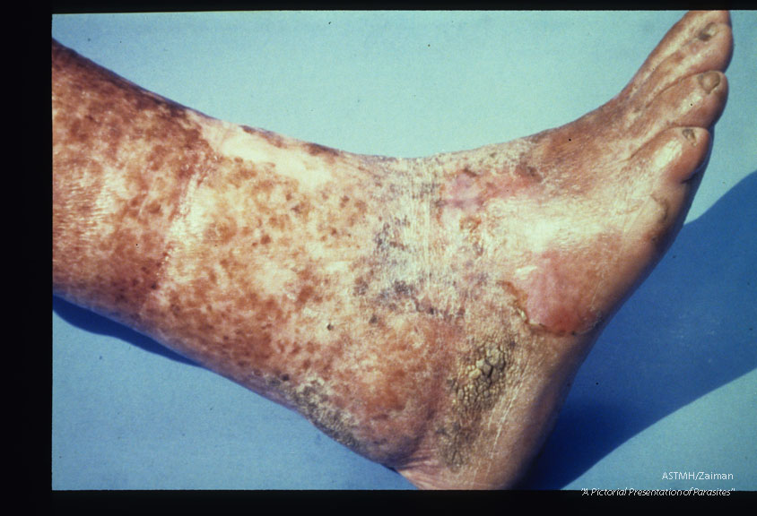 Elephantiasis, desquamation, thinning, and hyperkeratosis of skin on left leg of a sixty-six year old male. Patient stated that the use of isopropyl alcohol during attacks caused the desquamation. Case was acquired forty years ago.