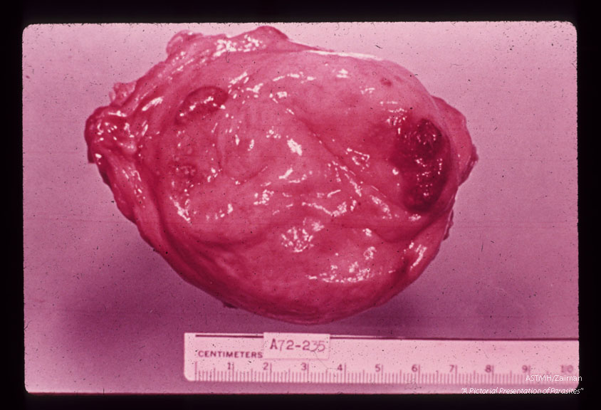 Egyptian male, approximately 10 years old. Urinary bladder with red elevated lesions at the apex and along the right ureteral orifice. Live eggs were not found distant to these foci suggesting that the adult worms nest at one site for some time. Eight pairs of adults were counted in the bladder vasculature.