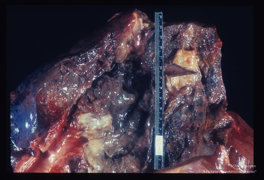 Hepato-pulmonary abscess communicating with bronchus.