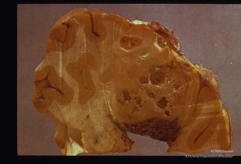 Racemose cyst in brain. Autopsy. Gross specimen.