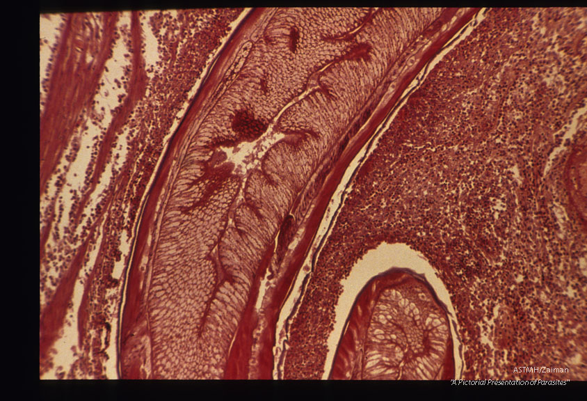 Low and high power magnifications of worm in human stomach wall. Case from Holland.