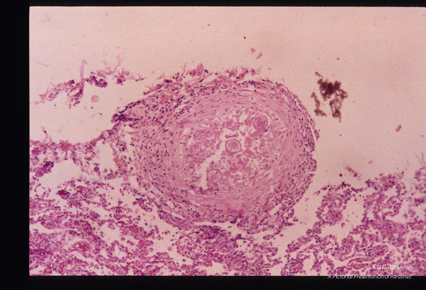 Same case. Pulmonary granulomas with larvae.