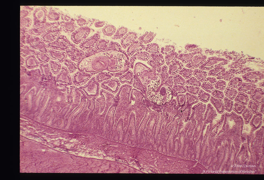Adult in intestinal wall.