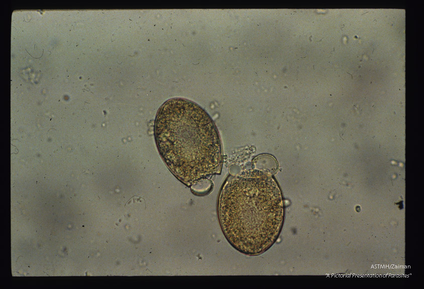 Two eggs in stool with operculi opened.