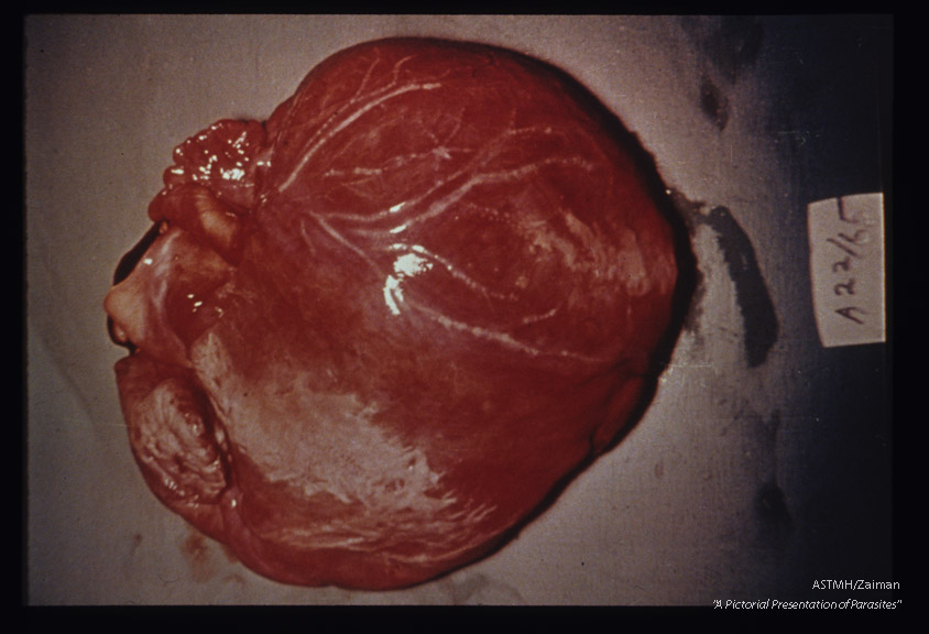 Gross pathology. Unopened heart showing myocarditis in Chagas' disease.
