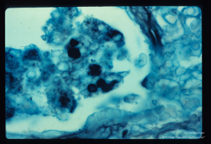 Pneumonia. High powered view of infected lung designed to illustrate dark staining nucleus and parasite wall by silver methenamine technique.