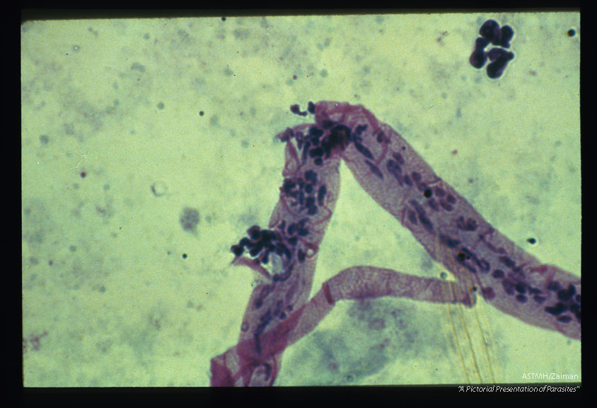 Giemsa stained damaged larva from A. gambiae midgut.