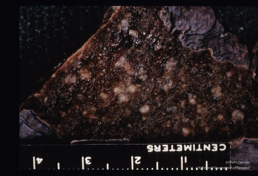 Gross pathology. Lung slices showing pseudotubercles in fatal pulmonary schistosomiasis.