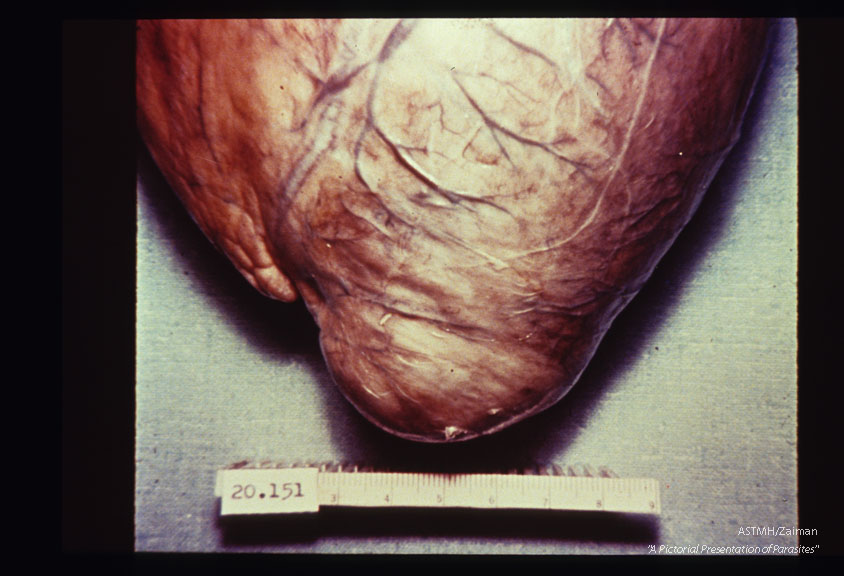 Multiple specimens showing aneurysmal dilatation and thinning of the apical myocardium, plus marked concentric muscular hypertrophy.
