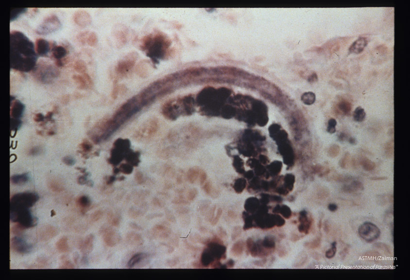Hematoxylin-eosin stained section of human lung showing larva in alveolus.