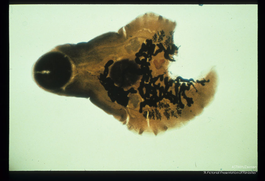 Adult trematode found in human pancreatic duct. Posterior amputated during dig section.