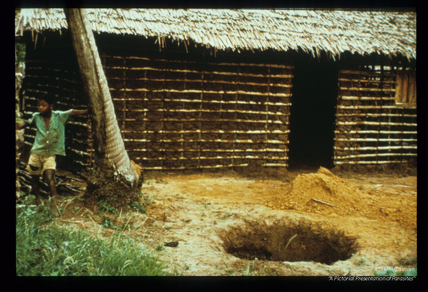 Tanzania. Mosquitoes breed in pit latrines like the one being dug here. Transmission occurs at night when mosquitoes invade houses via the eaves. Prevention might be achieved by screening and/or residual insecticides sprayed on walls where heavy mosquitoes rest after biting.